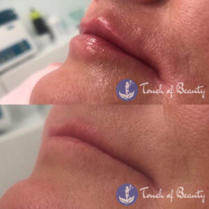 Touch of Beauty - Lip Fillers Gallery