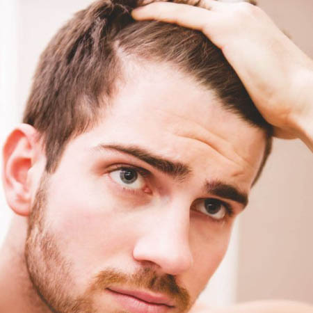 Scalp injections for hair loss